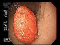 胃ポリープ